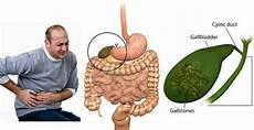 powerful chinese secret to remove gallstones in just 7 days time for natural health care