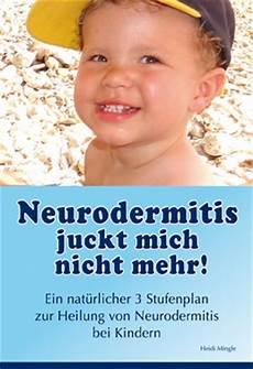 Neurodermitis Bei Babys - neurodermitis hilfe f 252 r ihr baby und ihr lesen sie