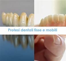 protesi dentali mobili protesi dentali studio dentistico dott moscetti terni