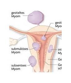 Myom In Der Gebärmutter - myome apotheken umschau