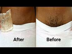 applied vaseline daily and after 30 days the results are more than amazing