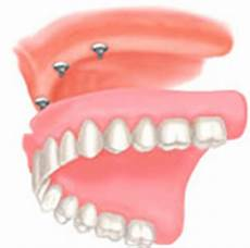 cheap dental implants in hungary dental threatments in