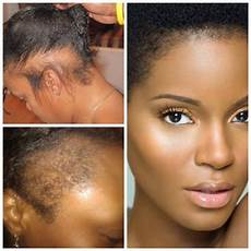 repair a damaged hairline and prevent future hair loss with nutresshair healthy hair products