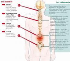 cote cassée douleur dans le dos mal de dos la posture souvent coupable