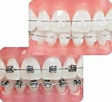Zahnspangen Vergleich