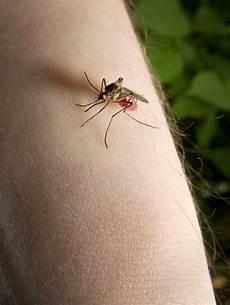 was hilft gegen mückenstiche 10 hausmittel gegen m 252 ckenstiche
