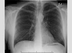 chest x ray with cancer