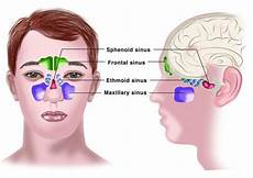 chronic sinusitis disease euforea