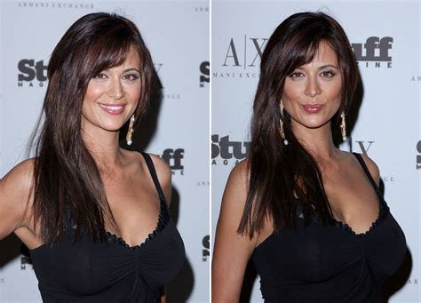 Catherine Bell Breast Reduction