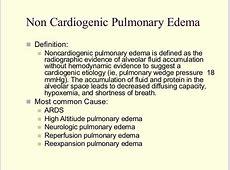 aspiration pneumonia hypoxia