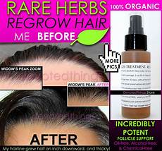 Best Hair Regrowth Shoo For