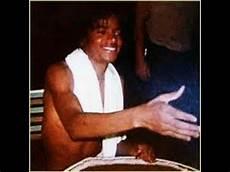 Michael Jackson Vitiligo - the michael jackson vitiligo