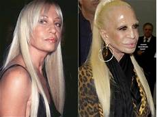 Jungs Malvorlagen Versace Donatella Versace Zu Viel Plastische Chirurgie Machen Eine