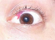 rottura vasi capillari rottura capillare nell occhio emorragia congiuntivale