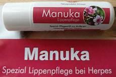 Was Tun Gegen Herpes - lippenpflege bei herpes was tun gegen herpes