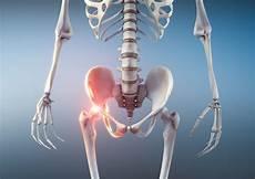 Hüftschmerzen Beim Sitzen - hip causes and treatments my pharmacy news