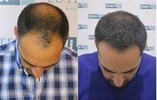 Greffes De Cheveux