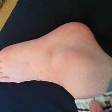 Pl 246 Tzlich Wasser In Den Beinen Medizin Beine Luft