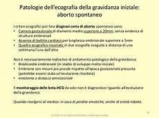 gestazionale senza embrione cause ecografia ostetrica easy