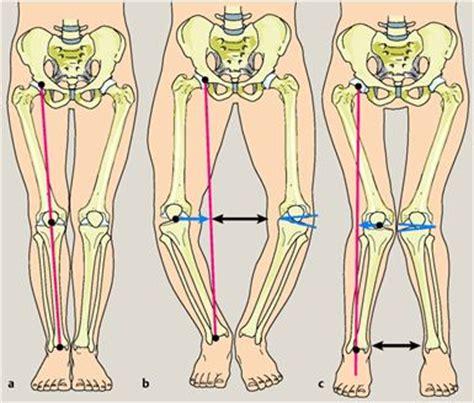 Tidak Mudah Hamil Penyakit Tulang Kaki Membentuk Huruf X Atau O