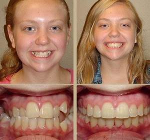 Before and After - Herremans Orthodontics for Children ...