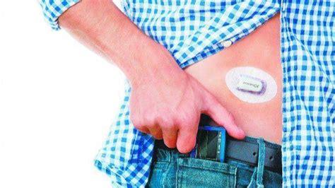 dexcoms wearable glucose monitors  pilot program