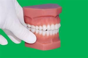 Dentist Show Molar Over Dental Teeth Model Mold Stock