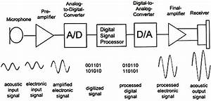 Block Diagram Of A Digital Hearing Aid