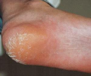 Kloven in voeten en tenen
