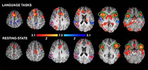 Study  Brain Scans Mapping Language And Memory Areas Can