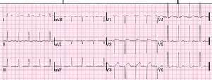 Dr. Smith's ECG Blog: Huge ST Elevation in V2 and V3. What ...