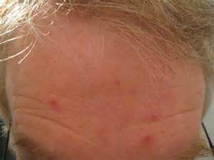 Beginning Stages of Ringworm On Scalp
