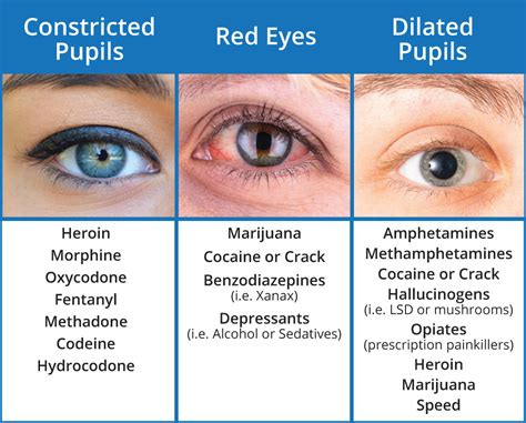 drugs  red eyes  dilated pupils sober college