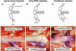 Effective Gene Expression In The Rat Dorsal Root Ganglia With A Non
