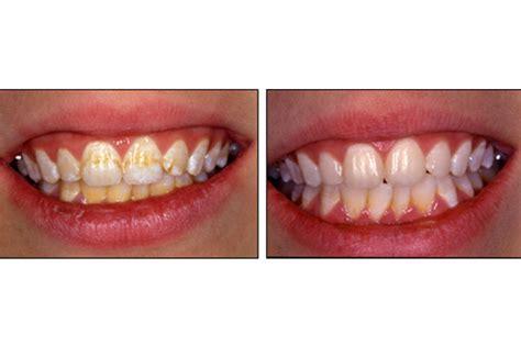 blanchiment dentaire m 233 decine dentaire cliniques ardentis