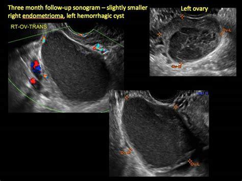 Imaging the endometrioma and mature cystic teratoma ...