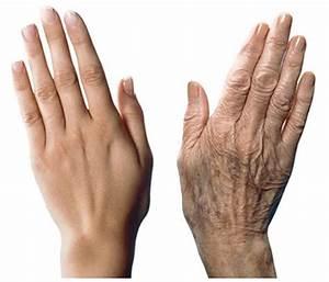 Hand cream for wrinkled hands