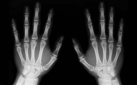 Scmwaterproofporous Radiography