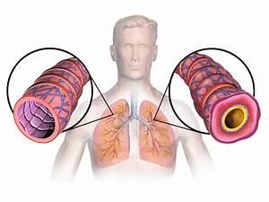 Asthma; Asthma, Bronchial; Bronchial Asthma