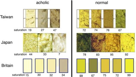 acholic stool saturation of stool color in hsv color model is a