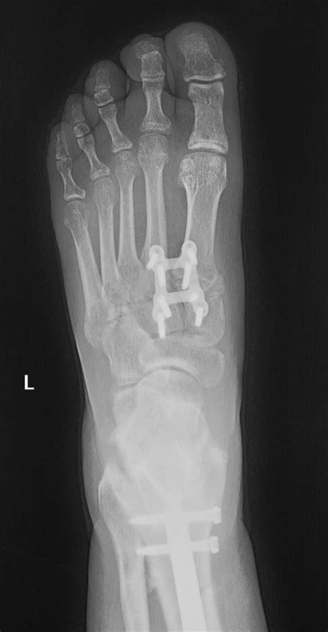 In athletes, injury typically is due to an axial load sustained with foot plantar. Lisfranc Injury - Foot & Ankle - Orthobullets