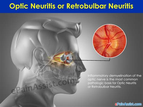 Optic Neuritis or Retrobulbar Neuritis