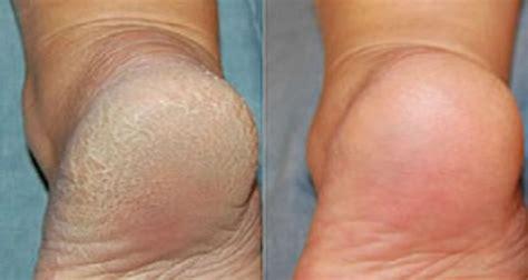 simple   effective   clean  feet
