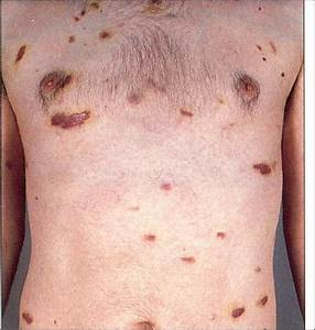 Kaposi sarcoma | www.surgicalnotes.co.uk