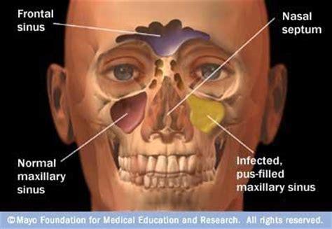 sinus infection swollen eyelid  doctors