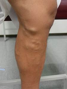 Varicose Veins Houston | Spider Veins Houston | Dr. David ...