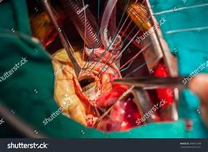 Heart Surgery Operating Room Stock Photo 299816798