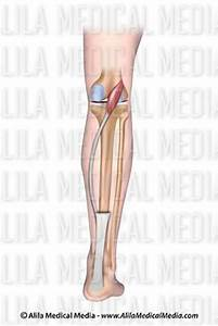 Trigger Point Referred Chart Alila Medical Media Management Images And Videos