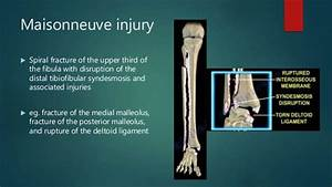 Ankle Fractures And Dislocations Injuries