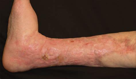 treatment  refractory ulcerative necrobiosis lipoidica